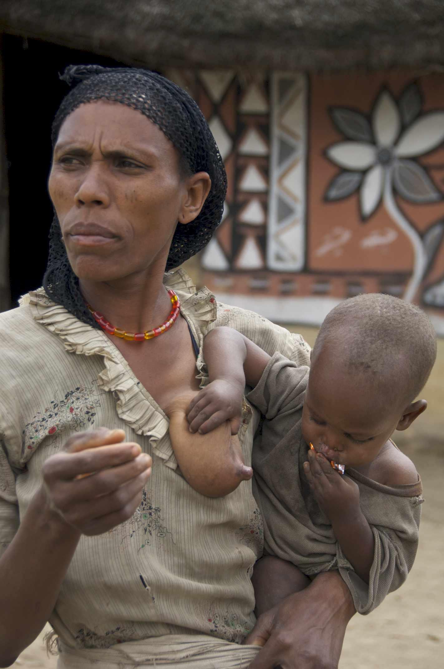 Etiopia 01
