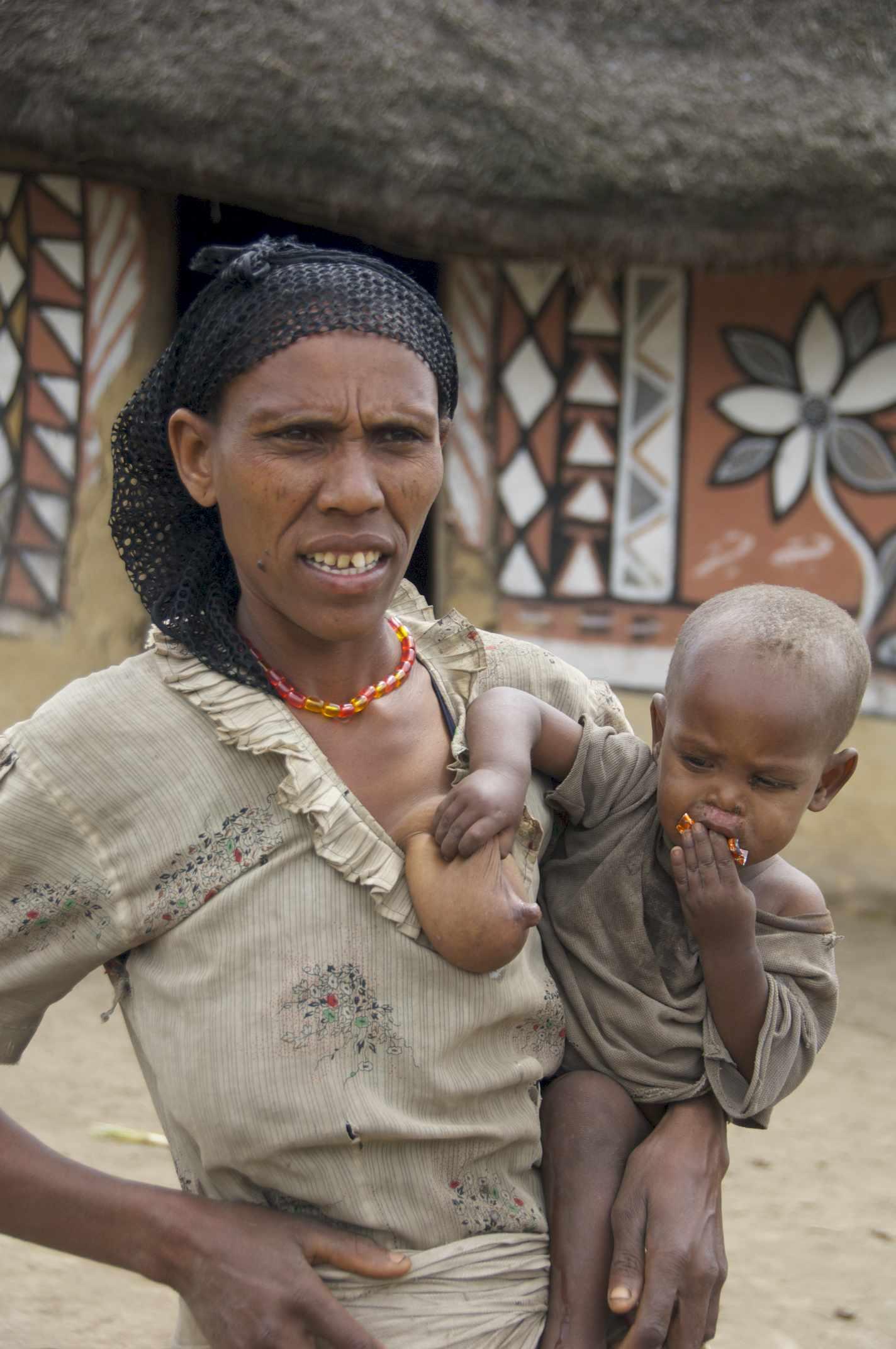 Etiopia 11